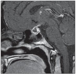 Apoplexie hypofýzy. Vyšetření MR, sagitální T1 snímek s aplikací kontrastní látky – postkontrastní nehomogenní sycení při objemovém zvětšení hypofýzy. <br> Fig. 4. Pituitary apoplexy. MRI scan, sagittal contrast enhanced T1-weighted image – enlarged pituitary gland with post-contrast nonhomogeneous enhancement.