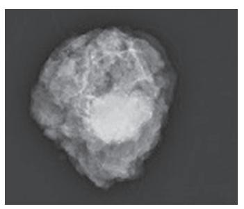 Mamografie resekátu<br> Fig. 3: Specimen mammography