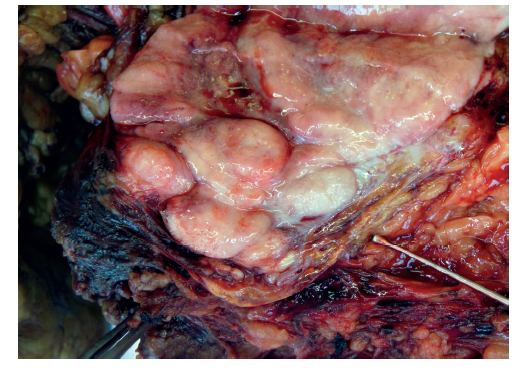 Fig. 3c: Specimen: off-white bulky tumour infiltrate affecting the ochre adrenal gland (labelled)