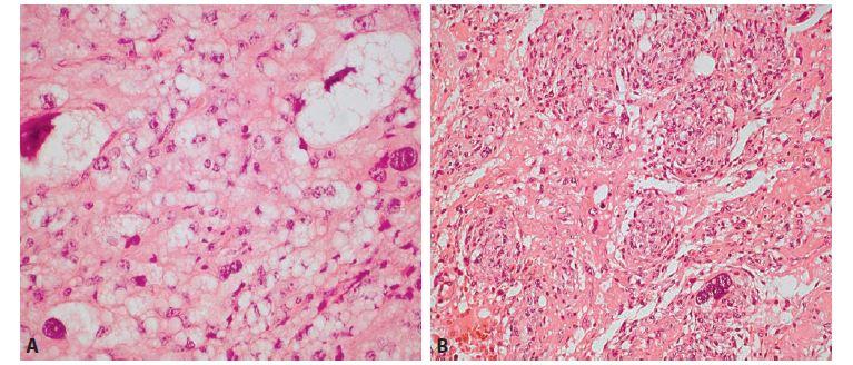 A: Nádor obsahoval zóny s monštróznymi lipoblastami (hematoxylin-eozín, 400x).<br> B: Druhú zložku nádoru predstavovala vretenobunková populácia objemnejších pleiomorfných buniek so svetlou cytoplazmou, ojedinele<br> s bizarným jadrom, s naznačenou multinodulárnou architektonikou (hematoxylin-eozín, 200x).