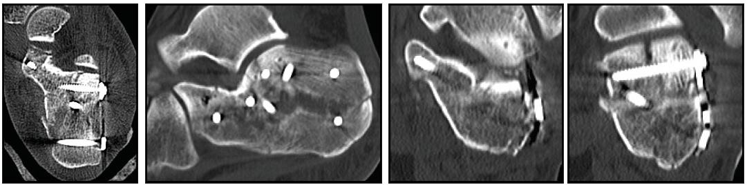 Pooperační CT obrazy po osteosyntéze zlomeniny patní kosti dlahovou osteosyntézou