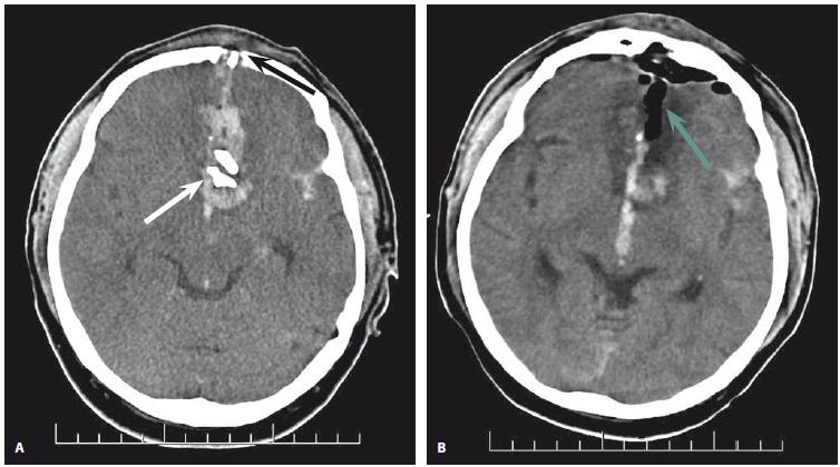 1. CT mozku 50letého pacienta po zástřelu jateční pistolí. Vlevo (1A) je znázorněn předoperační axiální snímek. Vstřel je umístěn v čelní kosti (černá šipka). Střelný kanál tečuje sinus sagittalis superior a proniká do mozkové tkáně paralelně s falxem. Kanál je vyplněn krví a jsou v něm uloženy úlomky kostí (bílá šipka). Vpravo (1B) je pooperační axiální snímek. Je patrná parciální evakuace hematomu a odstranění kostních úlomků. Dutina je vyplněna vzduchem (zelená šipka). Reziduální interhemisferální hemoragie zůstává nedotčena. Hypodenzita v okolí střelného kanálu je způsobena posttraumatickou ischemií a otokem okolní mozkové tkáně.<br> Fig. 1. CT scan of a 50-year-old patient after self-inflicted captive bolt gun injury. Left (1A): preop axial scan. The entry of the projectile is in the frontal bone (black arrow). The trajectory caused tangential involvement of the superior sagittal sinus and penetrated the brain tissue parallel to the falx. The trajectory is filled with blood and bone fragments (white arrow). Right (1B): postop axial scan. The bullet trajectory is filled by air (green arrow), partial evacuation of hematoma is visible and bone fragments are removed. The residual interhemispheric hemorrhage is left intact. Perilesional hypodensity is due to post-traumatic ischemia and brain edema.