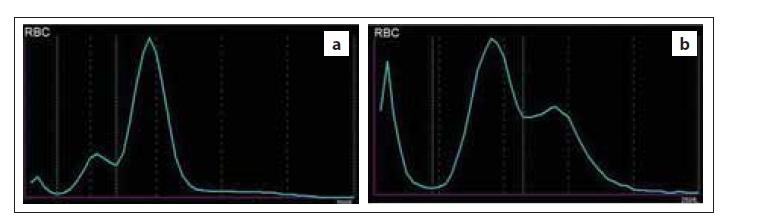 Histogram RBC s dimorfní populací erytrocytů – (a) nemocný po léčbě defi citu železa; populace mikrocytů a normocytů, (b) nemocná s akutní myeloidní leukemií; populace normocytů a makrocytů (zdroj: laboratoř IV. IHK).<br> RBC – erytrocyty