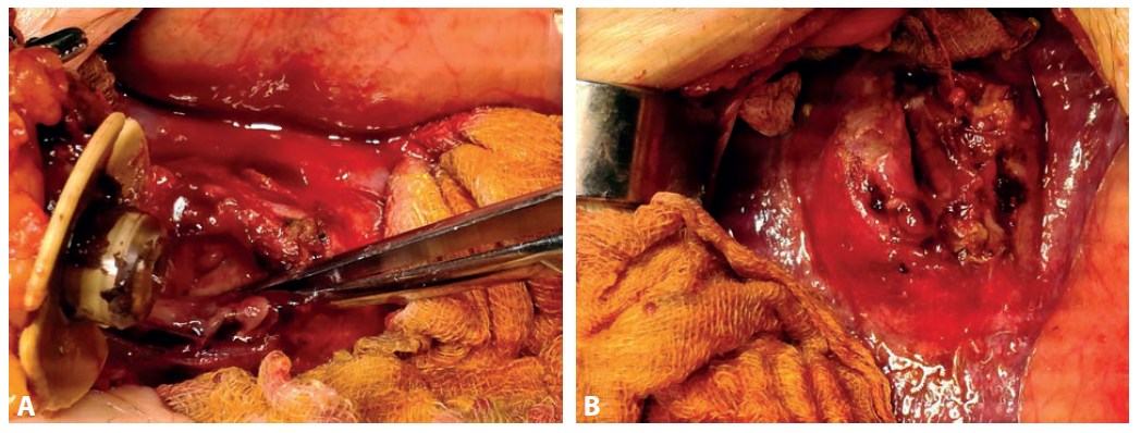 Peroperačný nález dislokovaného PEG do S2 heparu (a) s abscesovou dutinou (b)<br> Fig. 2. Peroperative fi nding of dislocated PEG to S2 of the liver (a) with abscess cavity (b)