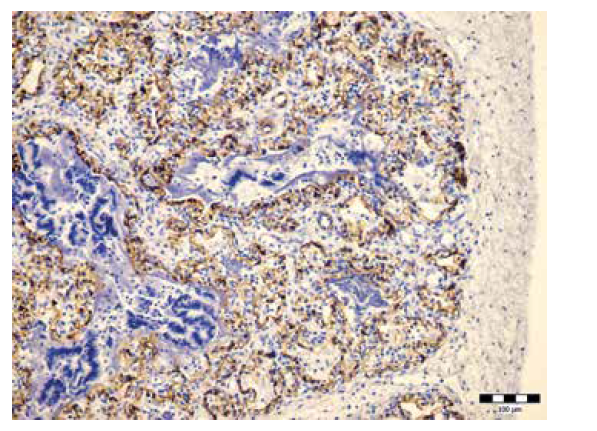 Hypoplázia pľúc (IHC laminín, zväčšenie 200x).