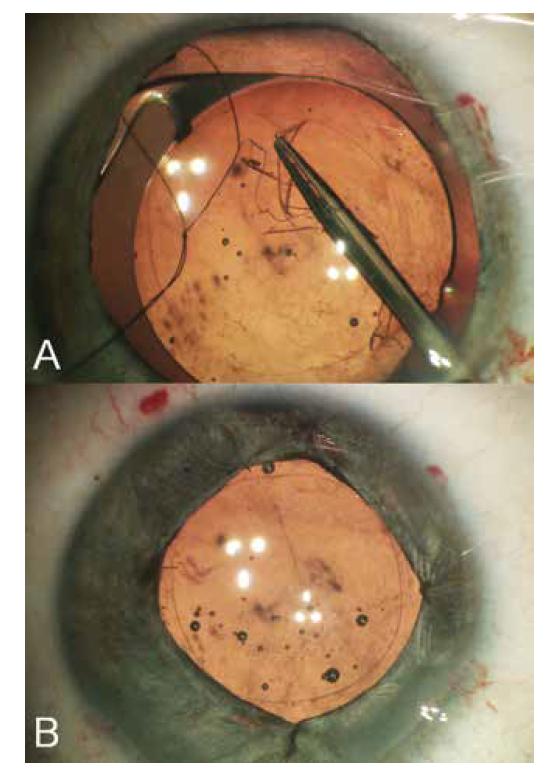 (A) Přizpůsobení velikosti přední kapsulorhexe podle optické části nitrooční čočky, (B) Iridoplastika čtyřmi stehy. Velikost rekonstruované zornice respektovala přání pacientky mít podobné zornice obou očí a současně potřebu zakrytím okraje optické části nitrooční čočky minimalizovat nepříznivé světelné efekty