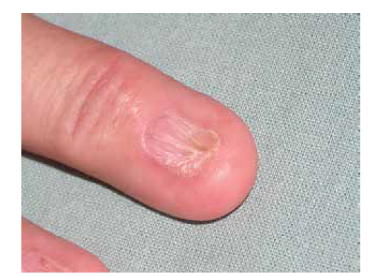 Pterygium unguiium (dorsalis): přerůstání proximálního nehtového valu a jeho srůstu s nehtovým lůžkem
