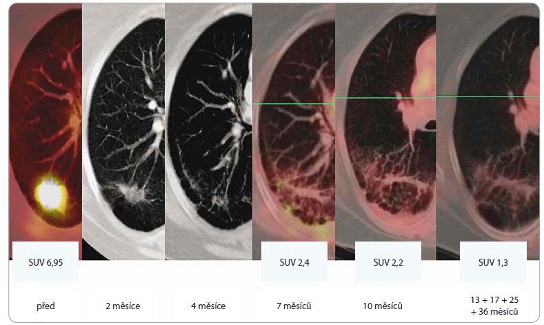 Efekt SBRT u adenokarcinomu dolního laloku levé plíce u 64leté pacientky, T2, medicínsky inoperabilního, ozářeného dávkou 5 × 11 Gy (PTV 61,5 ccm, D min. 45 Gy, D max. 59,9 Gy). Patrná je postupná regrese tumoru, rozvoj a konsolidace postradiační fibrózy (asymptomatické, bez nutnosti podání kortikoidů). Poslední obrázek v řadě ilustruje stacionární nález v 13., 17., 25. a 36. měsíci sledování.<br> SBRT – extrakraniální stereotaktická radioterapie, PTV – plánovací cílový objem, D – dávka záření, Gy – Gray