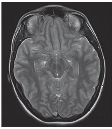 Obr. 2. MR mozku, T1 vážený obraz sagitální. Prominence kaudálních částí mozečku intraspinálně, zúžení IV. komory.<br> Fig. 2. MRI of the brain, T1-weighted image, sagittal plane. Caudal displacement of cerebellar tonsils, narrowing of the fourth ventricle.