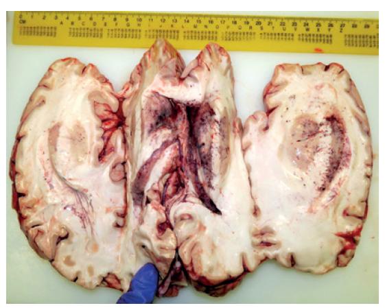 Komorový systému s mnohopočetnými léziami charakteru čerstvých krvácaní.