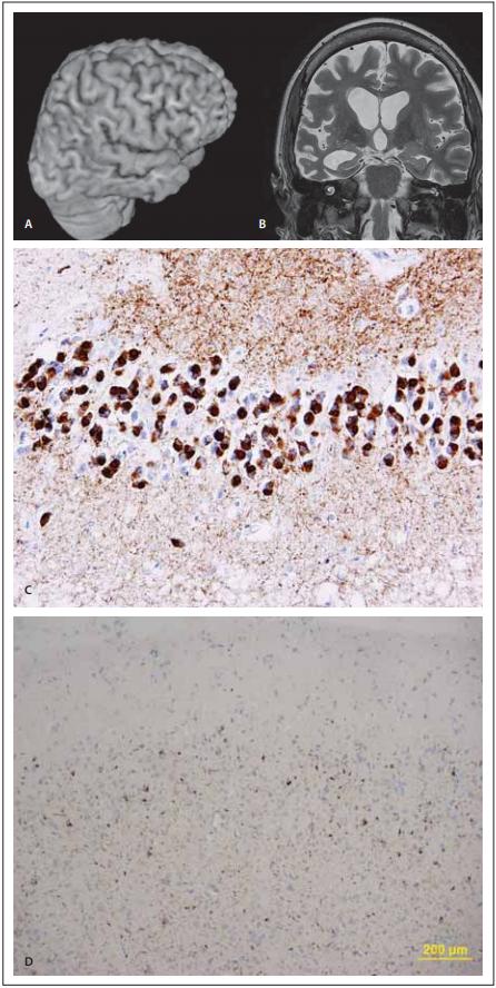 MR a neuropatologie u behaviorální  varianty frontotemporální demence.<br> Fig. 2. MRi and neuropathology in the  behavioral variant of frontotemporal  dementia.