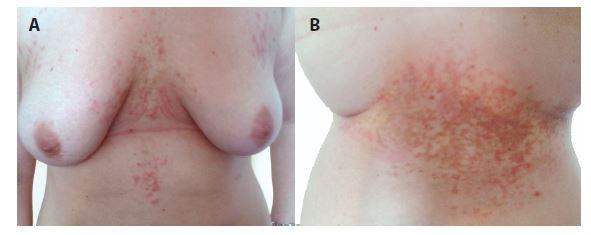 a, b. Prurigo pigmentosa – erytematózní retikulárně splývající makulopapuly přecházející v hnědé hyperpigmentace