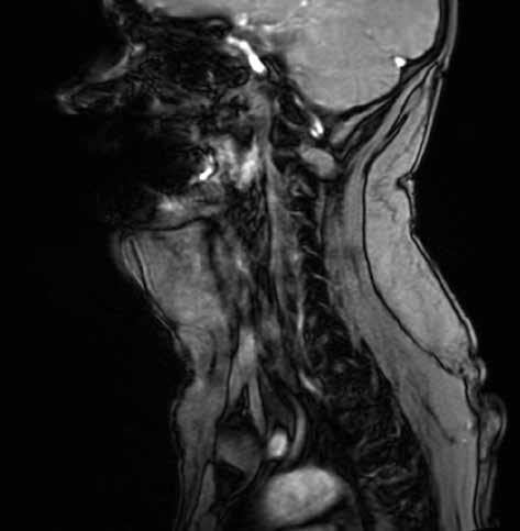 MRI krku s ventrálně uloženým lipomem<br> Fig. 5: MRI of neck with ventrally deposited lipoma