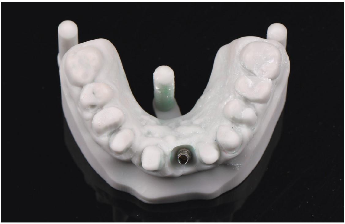 Obr. 4 3D vytištěný zubní model ze šedé pryskyřice s přípravou protetické rehabilitace<br> Fig. 4 3D printed dental model from grey resin with preparation for the prosthetic rehabilitation