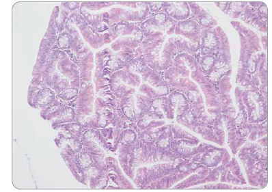 Tradiční serrated adenom tračníku s low-grade epiteliální dysplazií – komplexní stavba větvených krypt, pilovité uspořádání epitelu.