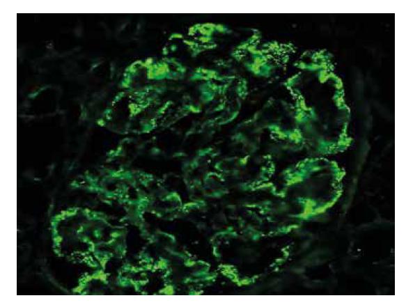 Imunofluorescenční detekce IgG s variabilní velikostí i distribucí granulárních depozit podél GBM.