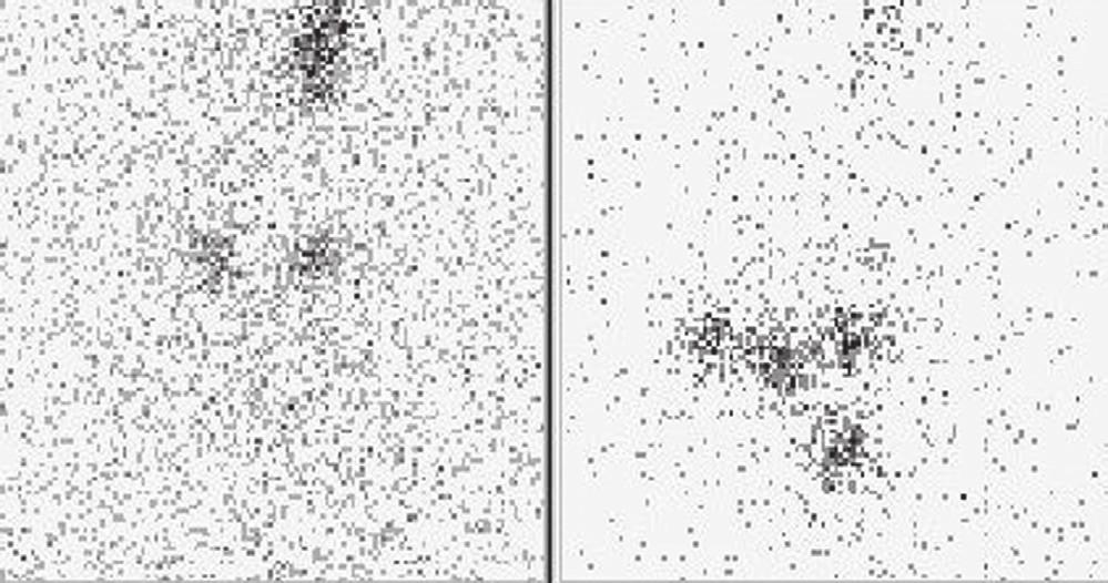 Obr. 3a Scintigram krku po dg. aplikaci 20 MBq <sup>131</sup>I – rezidua tyreoidální tkáně v lůžku štítné žlázy oboustranně a v místě lobus pyramidalis. Vysvětlivky: vlevo nativní scintigram, vpravo značení - scintigram stejné oblasti se značkou v místě jugula a nad ním značení jizvy po nTTE.
