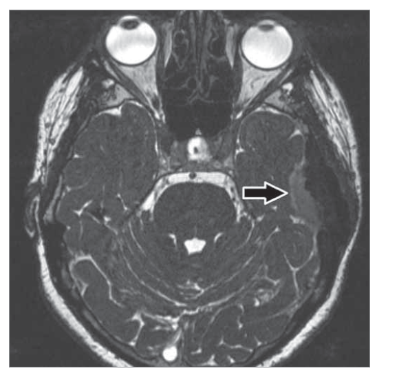 T2 vážená sekvence typu CISS axiální umožní posoudit vztah tumoru vůči mozkové tkáni – zachován proužek mozkomíšního moku, jde o nádor extraaxiální.<br> Fig. 6. T2 weighted sequence of the CISS axial type will allow to assess the relationship of the tumor to the brain tissue – preserved stripe of cerebrospinal fl uid, it is an extraaxial tumor.