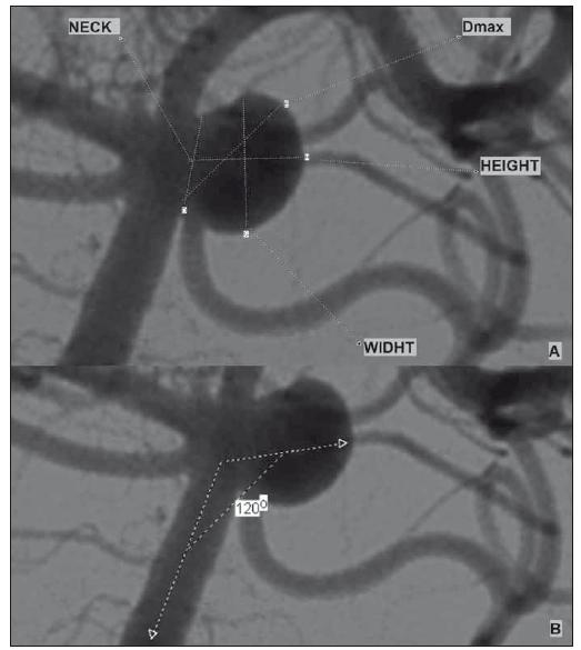 (A) Example of aneurysm morphological parameters; (B) aneurysm input angle measurement.<br> Obr. 1. (A) Příklad morfologických parametrů aneuryzmatu; (B) měření angulace aneuryzmatu.
