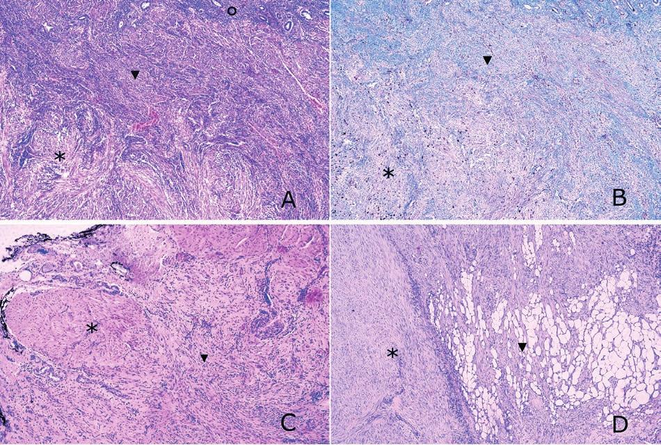 Histologický obraz a proliferační aktivita v disekujícím leiomyomu dělohy.<br> A: Řez zachycující endometrium (), myometrium () a intramurální složku disekujícího leiomyomu () (barvení hematoxylin-eozin, zvětšeno 200x).<br> B: Mírně vyšší proliferační aktivita Ki-67 v disekujícím leiomyomu () ve srovnání s přilehlým myometriem () (imunohistochemie, zvětšeno 200x).<br> C: Svalová vrstva stěny ureteru () infiltrovaná extramurální složkou disekujícího leiomyomu () (barvení hematoxylin-eozin, zvětšeno 200x).<br> D: Intramurální () i extramurální složka disekujícího leiomyomu s patrnou infiltrací tukové tkáně parametrií () (barvení hematoxylin-eozin, zvětšeno 200x).