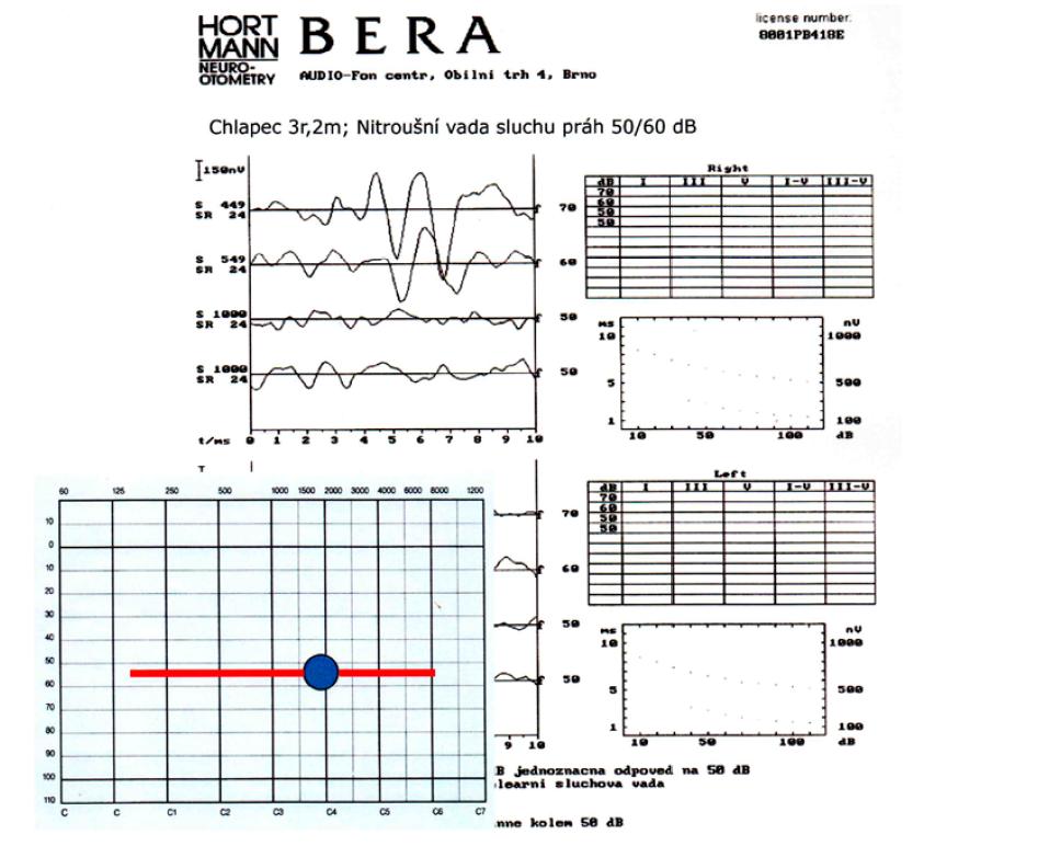 Práh sluchu může probíhat jako pankochleární ztráta (= ve všech frekvencích je podobná ztráta sluchu)…