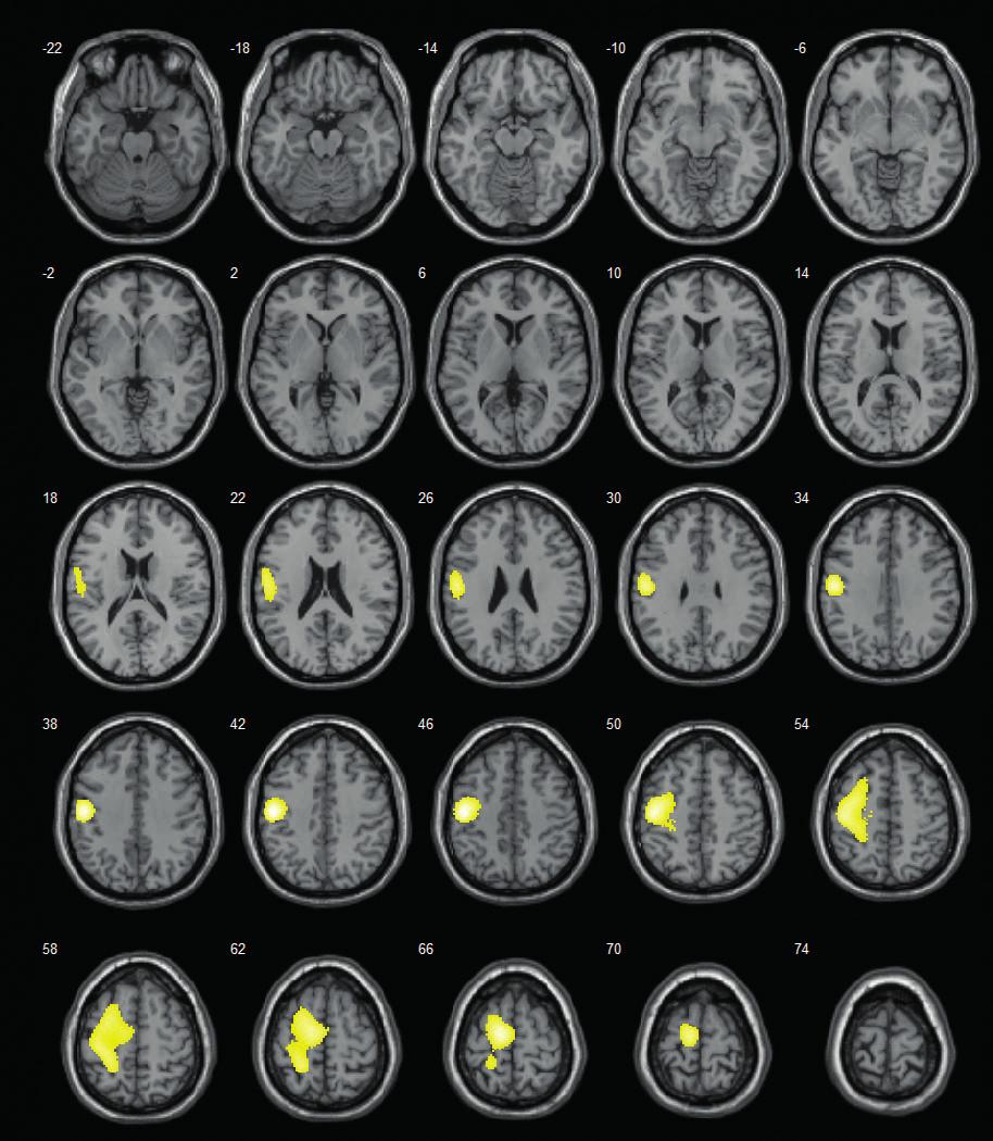 SISCOM – lokalizuje do levé frontální krajiny (v době vyšetření 14letá pacientka s farmakorezistentní epilepsií levého frontálního laloku; zóna počátku záchvatů dominantně v oblasti primárního motorického kortexu – verifikováno při následné invazivní EEG monitoraci pomocí subdurálního gridu; resekční výkon neindikován z důvodu jisté pooperační hemiparézy).<br> Fig. 1. SISCOM – localizes to the left frontal area (at the time of examination 14-y old girl with refractory left-sided frontal-lobe epilepsy; seizure onset zone predominantly in primary motor cortex – verified by subsequent invasive EEG exploration using subdural grid; resection was not performed for certain right-sided paretic deficit).