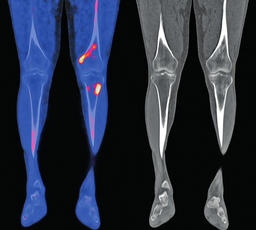 Snímek druhého pacienta<br> 18F-NaF-PET/CT obraz dolních končetin, koronární řezy: v distální části levého femuru (diafýza, epifýza) jsou patrné nevýrazné, nehomogenní okrsky sklerotizace, jen některé vykazují zvýšenou akumulaci 18F-NaF v PET/CT obraze. Maximum změn je v periférii kosti. Obdobný, více denzní nález je v CT obrazu také ve ventrálním okraji proximálního okraje levé tibie. V obdobné lokalizaci jsou diskrétní změny kostní struktury také v pravém femuru a pravé tibii.
