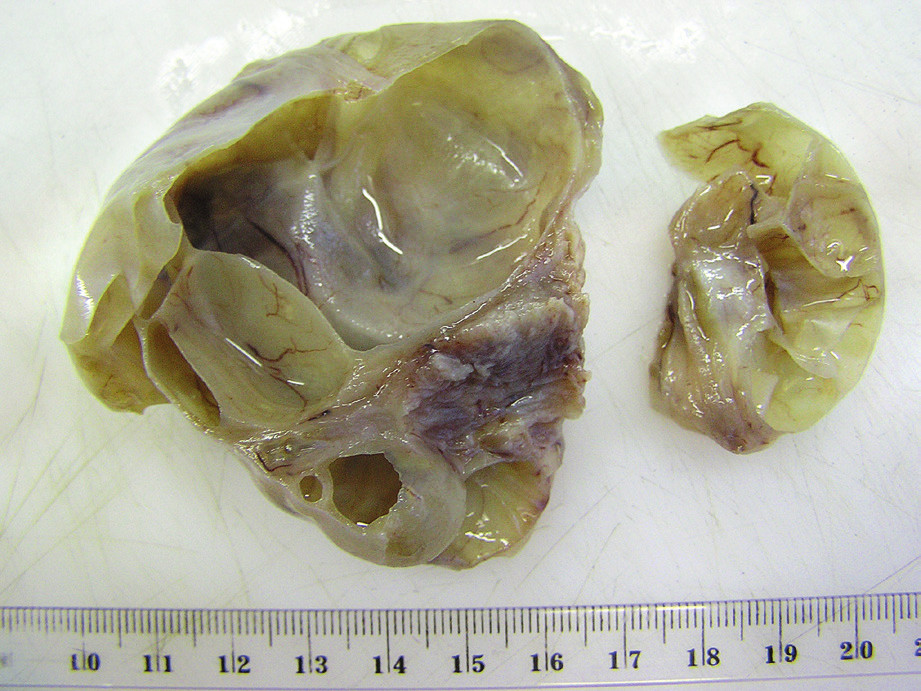 Čiastočne fragmentovaný resekát postihnutého ovária (kazuistika 1)
