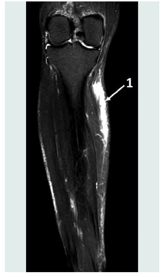 Fasciální prostor n. saphenus na lýtku. CT horizontální řez lýtkem, po podání 5 ml 0,9% NaCl do povrchních společných fasciálních struktur nervus a vena saphena magna. 1. ukazuje na kranio‑ kaudální distribuci roztoku povrchní fascií