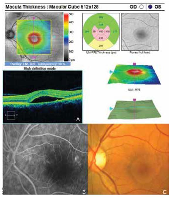Známky centrální serózní chorioretinopatie levého oka