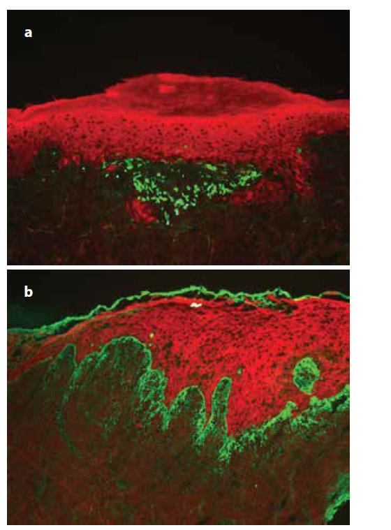 Přímá imunofluorescence lichen planus<br> a) pruhovitá, cárovitá imunofluorescence fibrinogenu podél bazální membrány,<br> b) IgM pozitivní cytoidní tělíska ve shlucích subepidermálně