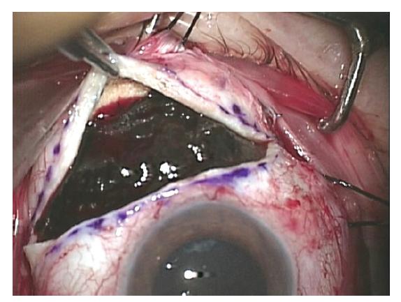 Exoresekce uveálního melanomu