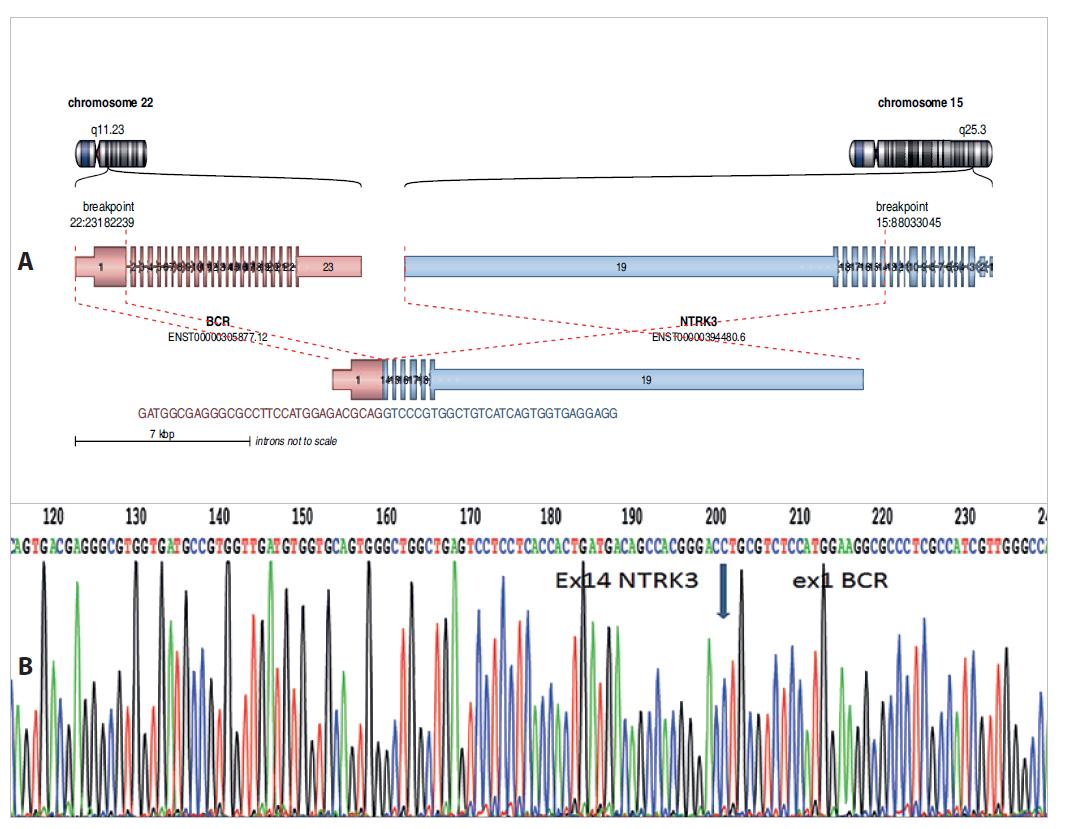 A: Nově diagnostikovaný fúzní gen BCR-NTRK3 u dětské pacientky s low-grade gliomem. Analýza pomocí Arriba software https://github. com/suhrig/arriba. B: Sekvenační analýza fúzního produktu BCR-NTRK3 pomocí Sangerovy sekvenace.