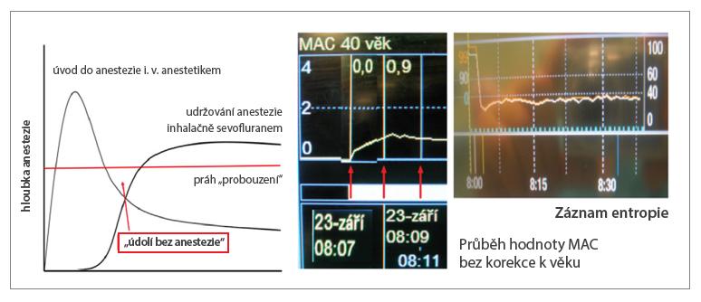 """K """"údolí bez anestezie"""" nedochází ani při použití technik s nízkým FGF již od začátku anestezie, jak dokumentuje skutečný záznam vzestupu MAC a průběhu entropie u 71letého pacienta s BMI 26,5 po úvodu etomidátem a sufentanilem podstupujícího koronární revaskularizaci. Aplikace sevofluranu byla zahájena bezprostředně po intubaci (rocuronium 1 mg/kg), odpařovač nastaven na 8 %, FGF 1 l/min, FiO2 0,5. Hodnoty MAC 0,8 (chybně nekorigované podle věku) bylo dosaženo za 4 minuty)."""