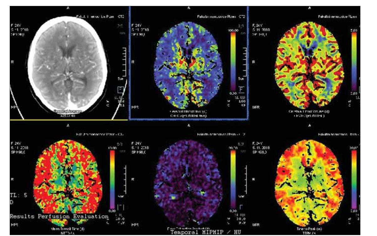 Bazální perfuzní CT s významným oboustranným snížením mozkového krevního průtoku.<br> Fig. 3. Basal perfusion CT with signifi cant bilateral decrease of cerebral blood fl ow.