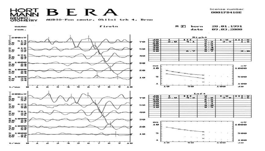 Normální výsledek BERA1