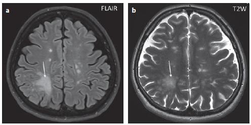 Pacient č. 8: v sekvenci FLAIR je patrné hypersignální nepravidelné ložisko v bílé hmotě pravého parietálního laloku, zasahující subkortikálně – PML ložisko (šipka), dále jsou patrná drobná oválná hypersignální ložiska, která odpovídají lézím u RS (a). V T2 váženém obraze je patrný inhomogenní signál v oblasti výše popsané PML léze, naznačený drobnoložiskový charakter typický pro PML (šipka), dále jsou patrná ložiska RS (b).<br> FLAIR – fluid attenuated inversion recovery; PML – prograsivní multifokální leukoencefalopatie<br> Fig. 1. Patient No. 8: FLAIR showing a hypersignal confluent lesion in the white matter, affecting the subcortical part in the right parietal lobe – a PML lesion (arrow), as well as small oval hypersignal lesions that correspond to MS lesions (a). T2WI; there is a non- -homogeneous signal in the area of the PML described above, as indicated by the tiny marks characteristic of PML (arrow) (b).<br> FLAIR – fluid attenuated inversion recovery; PML – progressive multifocal leukoencephalopathy