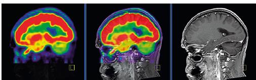 PET CT zobrazení mozku, červená barva znázorňuje intenzivní akumulaci fluorodeoxyglukózy (FDG), zatímco zelená barva odpovídá snížené akumulaci FDG<br> V oblasti cerebella, které je postiženo neurodegenerativními změnami, je zřetelné snížené vychytávání FDG a neurodegenerativní změny byly u tohoto pacienta zřetelné i na MR zobrazení.