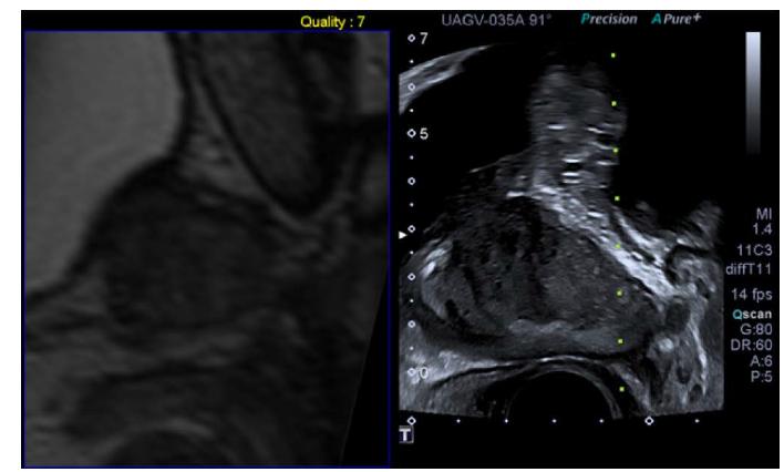 Softwarová mpMRI/US fúzní biopsie. Archiv autora<br> Pic. 3. Software mpMRI guided fusion biopsy. Author's archive