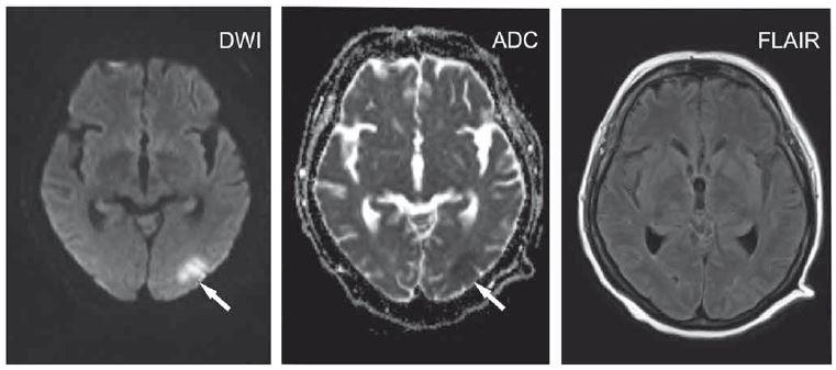 Polymorbidní pacientka ve věku 65 let s kvantitativní poruchou vědomí charakteru až soporu/komatu v terénu demence.<br> Okcipitálně vlevo okrsek se zvýšeným signálem na DWI a sníženým signálem na ADC odpovídající restrikci difuze (šipky), na FLAIR není patrná změna intenzity signálu. Velmi časná ischemie.<br> ADC – aparentní difuzní koeficient; DWI – difuzí vážený obraz; FLAIR – inverzní zobrazení s potlačením signálu tekutiny<br> Fig. 1. A 65-year-old polymorbid woman suffering from dementia with a quantitative disorder of consciousness characterized by stupor/ coma. Located occipitally on the left, an area hypersignal on DWI and hyposignal on ADC corresponds to diffusion restriction (arrows) with no changes on FLAIR. Hyperacute ischemia.<br> ADC – apparent diffusion coefficient; DWI – diffusion-weighted image; FLAIR – fluid attenuated inversion recovery