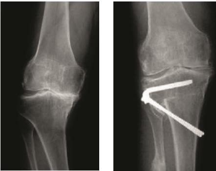 RTG snímky kolena sartrózou mediálního kompartmentu vpředozadní projekci před apo osteotomii (převzato z1).