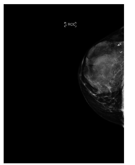 Mamograf, kraniokaudální projekce, primární tumor.<br> Fig. 2: Mammogram, craniocaudal projection, primary tumor.