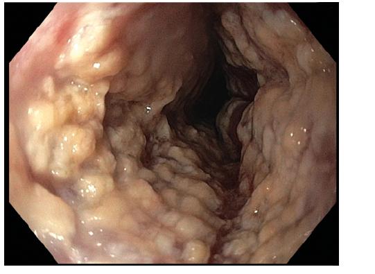 Endoskopický obraz těžké mykotické infekce. Fotografie z proximálního jícnu