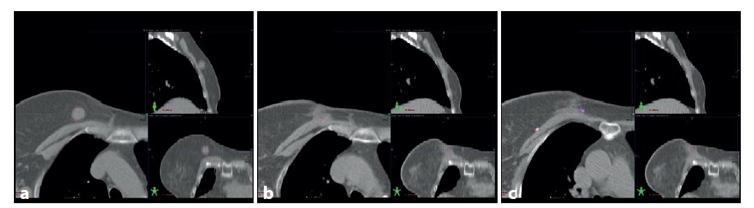 : a – předoperační CT s tumorem (konturován hnědě), b – pooperační CT ve stejné lokalizaci, c – pooperační CT v oblasti s metalický klipy v lůžku tumoru (hnědě kontura původní lokalizace tumoru)<br> Fig. 2: a – preoperative CT, tumor contoured brown; b – postoperative CT in the same location; c – postoperative CT with metallic markers in the postlumpectomy cavity (original tumor site contoured brown)