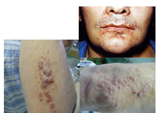 LCH infiltruje často zapářkové intertriginozní oblasti, ale může se objevit i na obličeji a na paži<br> Makroskopicky může připomínat folikulitidu a jedině histologické vyšetření excise kůže může správně stanovit diagnózu. U špatně se hojících či nehojících se kožních morf je proto na místě vždy histologická verifikace kožního onemocnění.