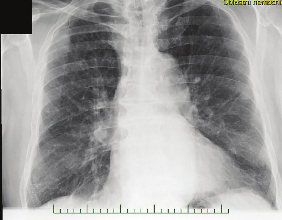 Suspektní metastázy na RTG snímku před provedením PET/CT hrudníku<br> Fig. 3: Native X-ray image of the lungs with suspected metastasis before PET/CT of the trunk