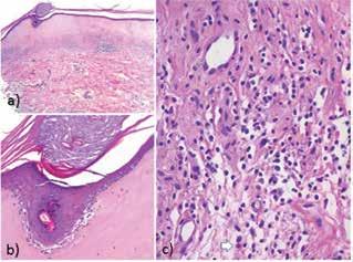 Typický histopatologický obraz LS zahrnuje atrofickou epidermis krytou folikulárně akcentovanou hyperkeratózou se známkami vakuolární degenerace bazální vrstvy (b) s inkontinencí pigmentu. V koriu, subepidermálně, je pruh eozinofilně homogenizovaného kolagenu s  ojedinělými melanofágy, pod kterým je patrný pás intersticiálního a perivaskulárního mononukleárního infiltrátu (a), s ojedinělými eozinofily – bílá šipka (c)