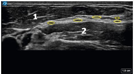 Ultrazvukový obraz cervikálního plexu