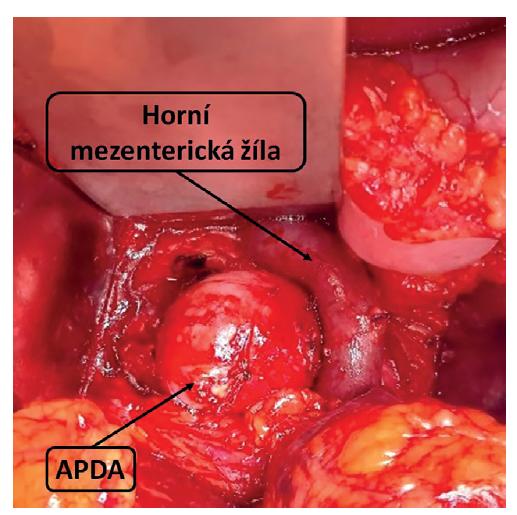 Peroperační nález APDA<br> Fig. 3: Intraoperative finding of APDA