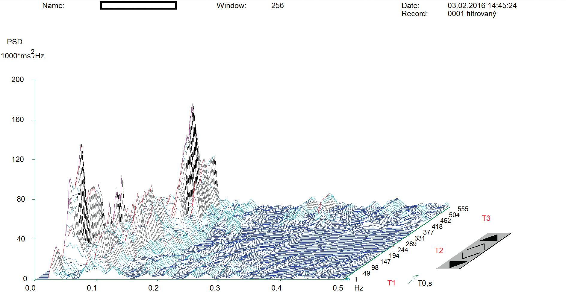 Spektrální analýza variability srdeční frekvence probanda před aplikací zvoleného relaxačního programu AVS.